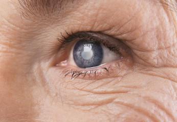 Acuitate vizuală complicată a cataractei