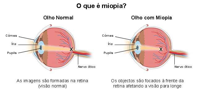 pupilă miopie