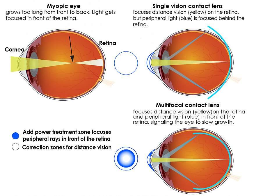 îmbunătăți miopia 5