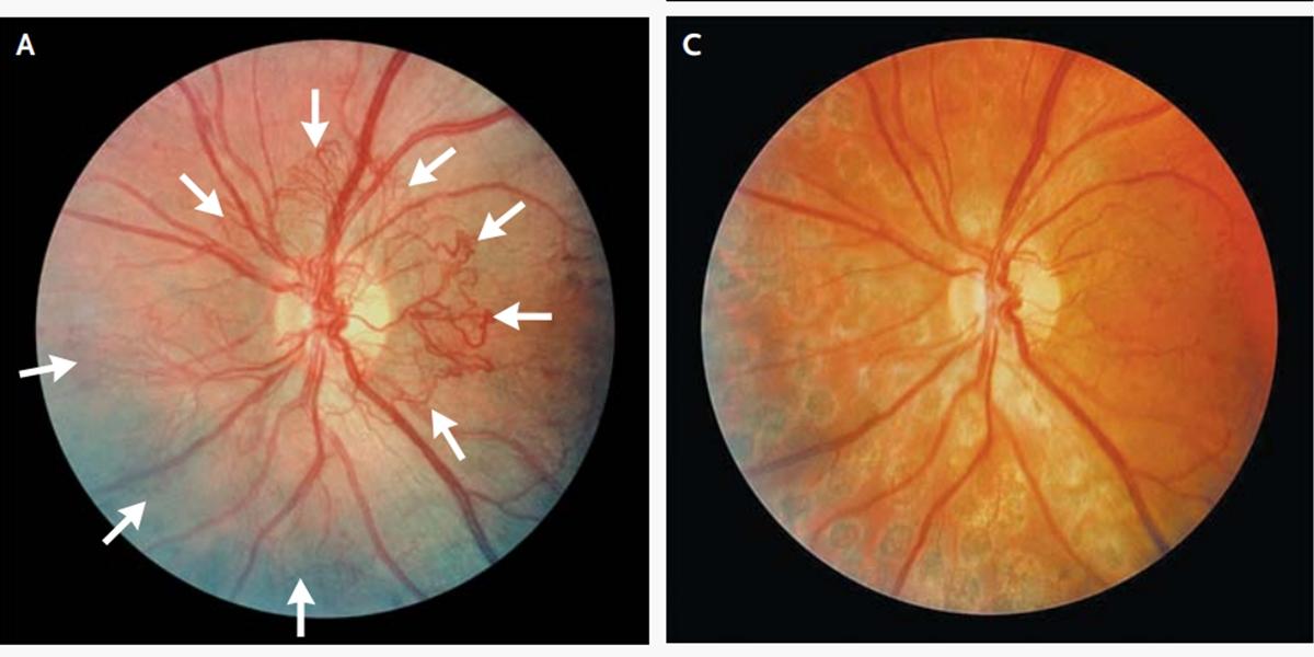 vedere după retinopatie