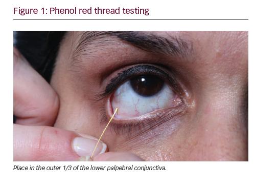test de screening ocular
