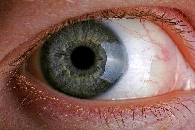 restabiliți vederea într-o singură zi
