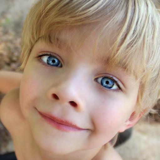cum altfel este miopia exerciții pentru ochii care au miopie