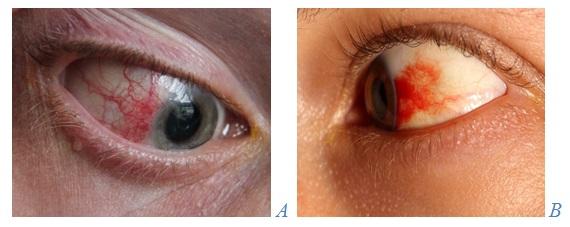 conjunctivita scăderea vederii