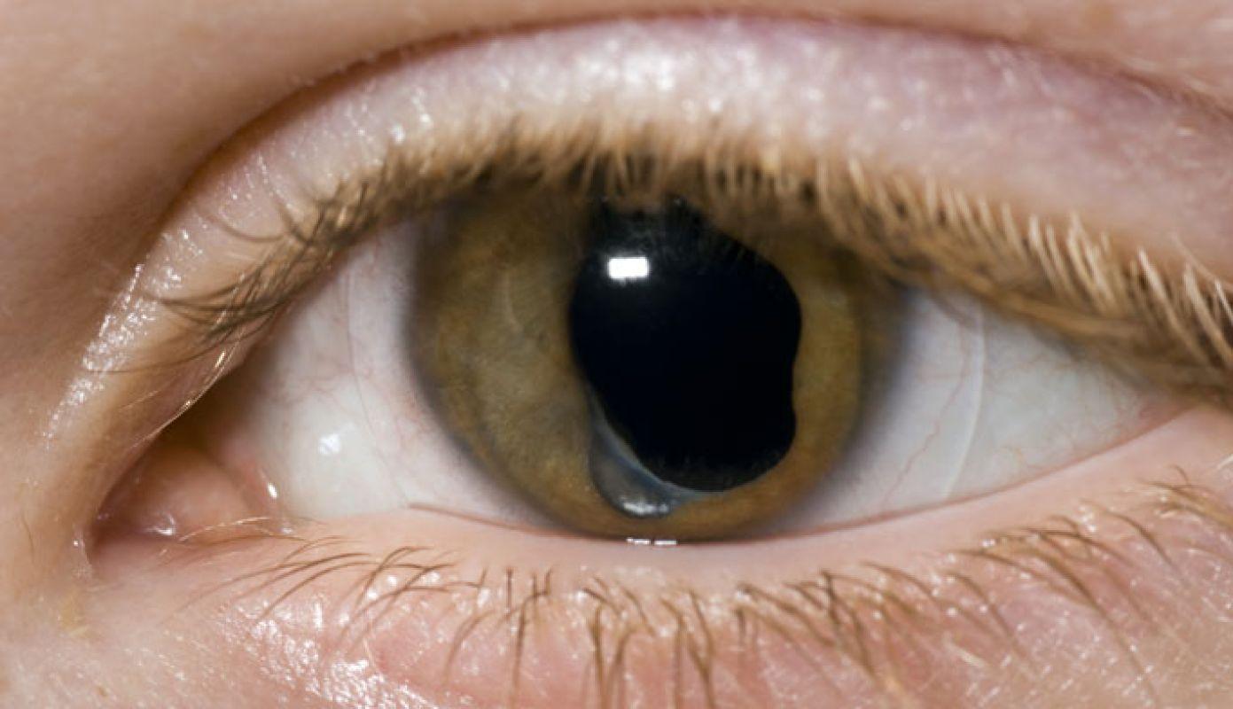 cum să tratezi orbirea
