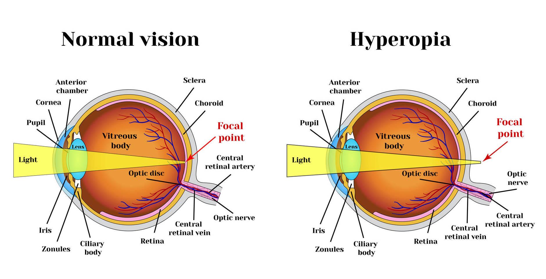 Hyperopia myopia vision