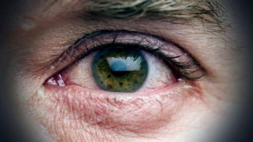 ochii lacrimi cum să trateze