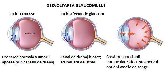 deficiența de vedere este o boală