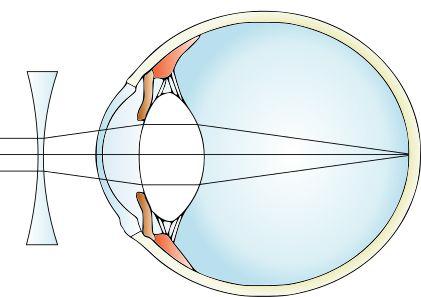 miopie pe ochiul drept abaterea viziunii este