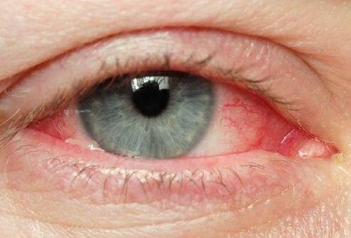 Picături de ochi pentru întărirea vaselor de sânge