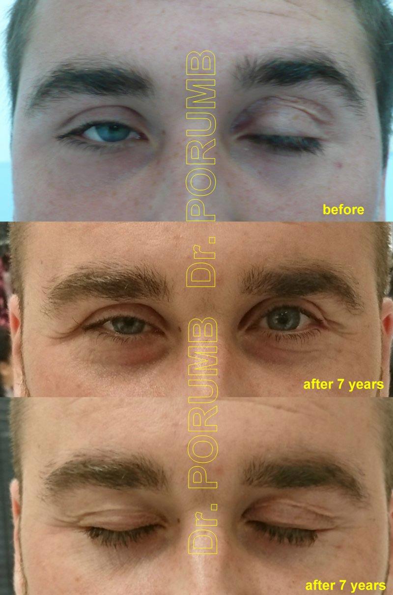vedere cu un singur ochi după operație