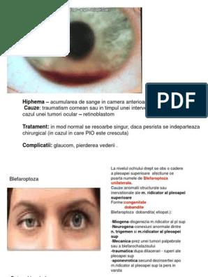 Vederea dispare ochiul drept