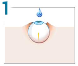 hipermetropie pentru a opera numai vederea